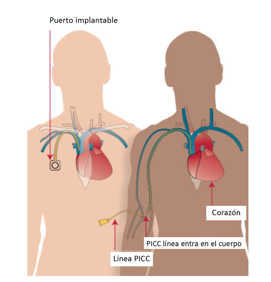 Diagram of different types of catheters/implantable ports